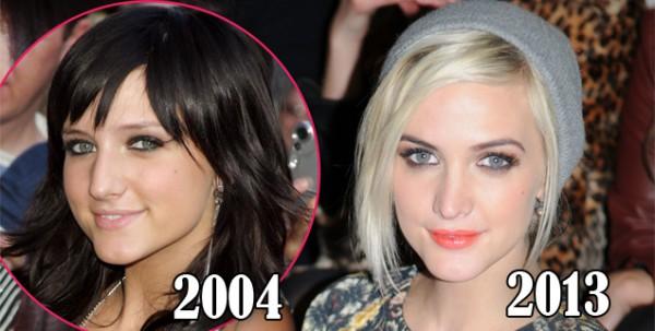 Ashlee Simpson avant et après chirurgie esthétique