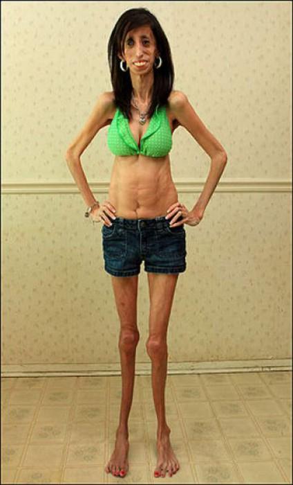 femme maigre et moche