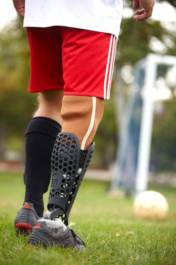Populaire 22 prothèses qui prouvent qu'on peut garder le style malgré le  UD64