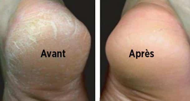 bicarbonate de soude pour les pieds