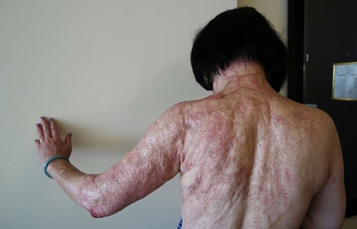 515x330_kim-phuc-montre-cicatrices-laissees-dos-cou-bras-gauche-napalm