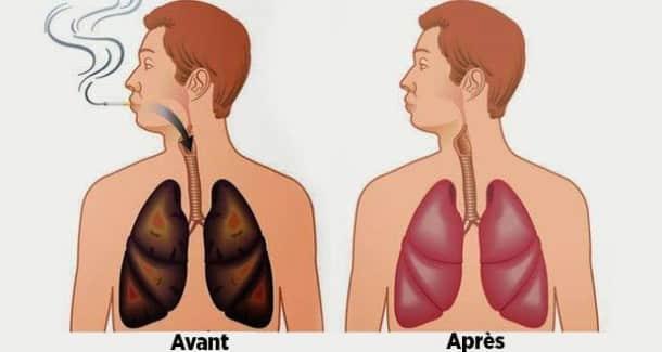les-aliments-nettoient-vos-poumons-de-la-nicotine-et-des-goudrons