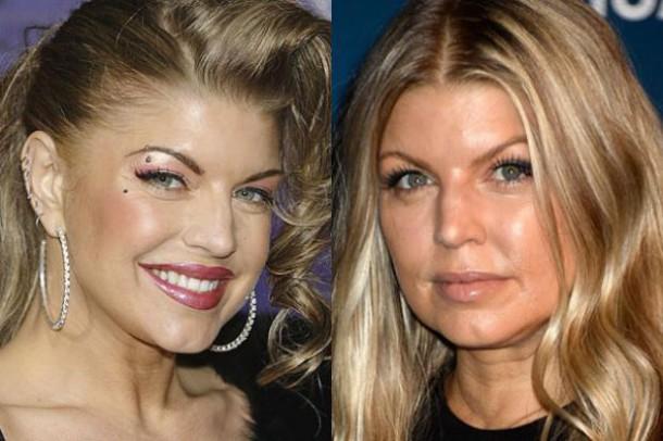 Fergie - La chanteuse a mis du temps à revenir de sa descente en enfer.