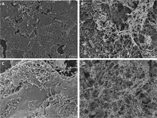 Images présentant la chronologie des bactéries apparaissant dans le bac d&égouttage d&une machine Krups après 4 (A), 8 (B), 14 (C) et 21 jours (D).