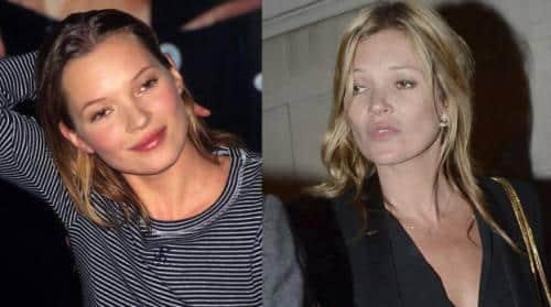 Kate Moss - Le mélange parfait de la mannequin : vodka - cocaïne et plans à trois !