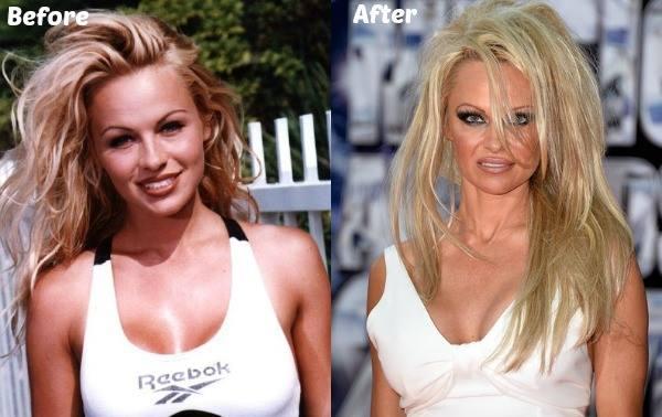 Pamela Anderson- La célèbre actrice d&Alerte à Malibu avait confié son addiction pour la cocaïne et l&alcool.