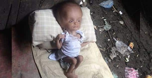Elle a trouvé cette petite fille abandonnée sur une pile de déchets. Deux ans plus tard, regardez à quoi elle ressemble !