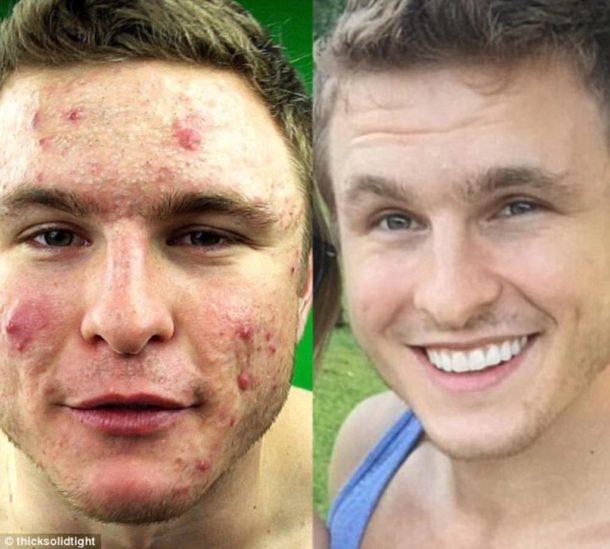 5b6573a916d Ce jeune homme s est débarrassé de son acné en changeant quelque ...