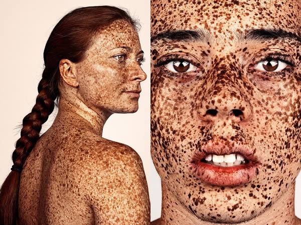 La meilleure crème tonale pour la peau avec les taches de pigment