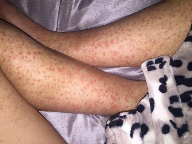 allergie au rasoir femme