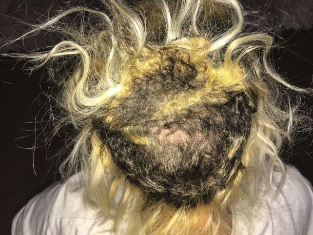 Le forum sur keratinovom la restitution des cheveu