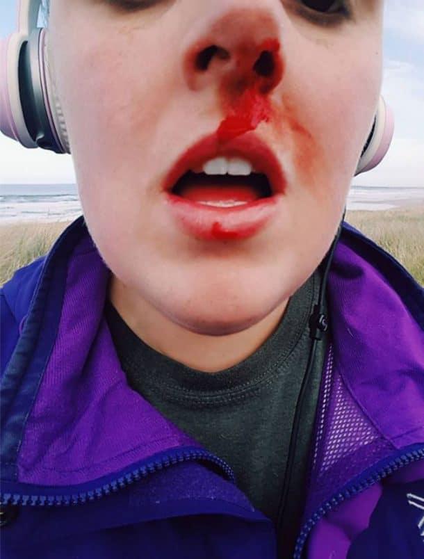 Frappée au visage pour avoir tenter de défedre un animal
