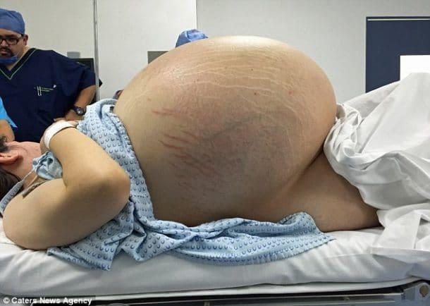 Cette femme voyait son ventre gonfler d'une façon ...