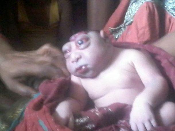 bébé arlequin maladie