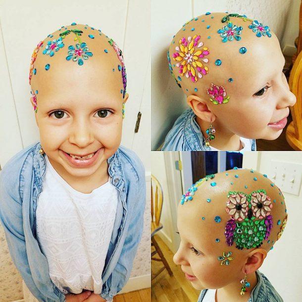 Gianessa souffre d'alopecie