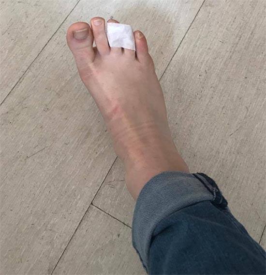 pieds en compote