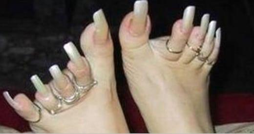 20 photos d\u0027ongles de pieds immondes ! Les pires doigts de pieds du monde  sont ici.