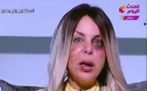 Manal Agha dénonce les violences conjugales