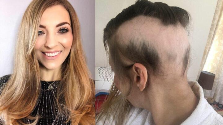 perte de cheveux liée au stress