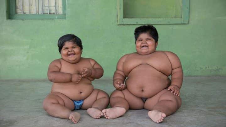 soeurs obèses chirurgie bariatrique