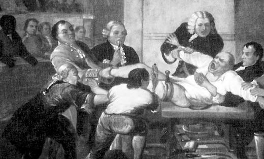 Ce chirurgien est connu pour avoir réalisé l'opération la plus mortelle de l'histoire, une véritable boucherie