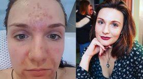 toc gratter la peau du visage dermatillomanie