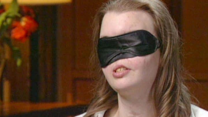 femme sans visage masque prothèse silicone