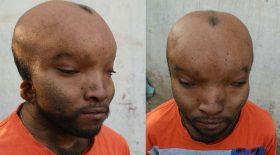 homme alien visage difforme crânce allongé