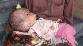 bébé tête gonflée hydrocéphalie