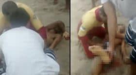 Un homme s'est fait arracher le pénis par un requin
