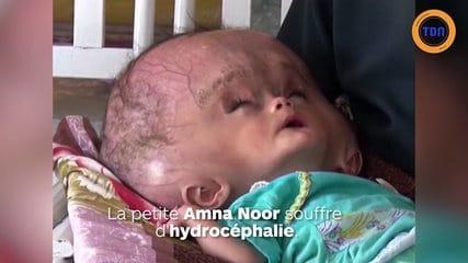 Un bébé de 7 mois a une tête plus grosse qu'un ballon de foot : les ...
