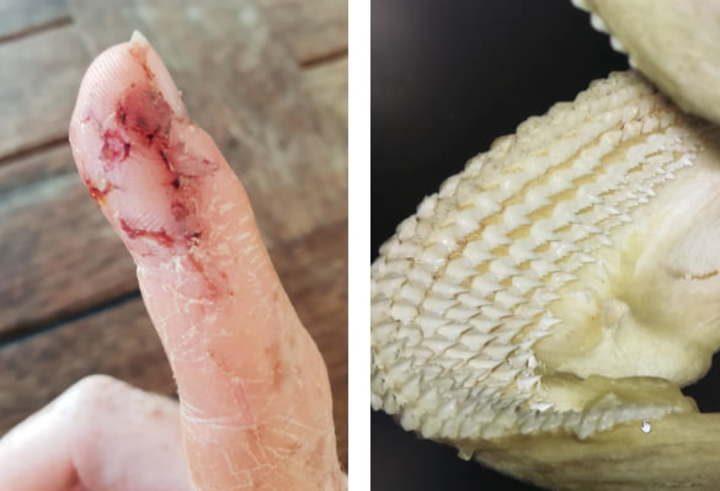 blessure de requin