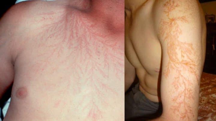 cicatrices foudre éclair