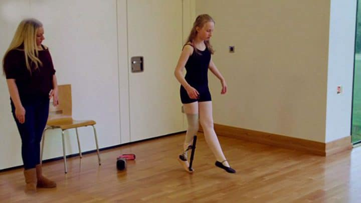 danseuse fait des pointes prothèse amputée