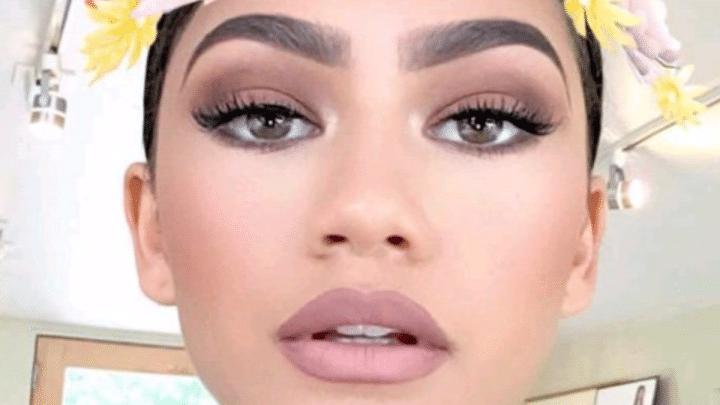 Se faire opérer pour ressembler aux filtres Snapchat ! (photos) — Tendance