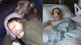 homme léché par un chien bactérie amputé