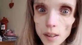 Kristina-Karyagina-médecin-anorexique