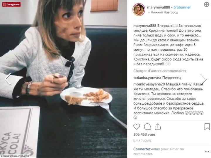Kristina-Karyagina-médecin-anorexique-guérison