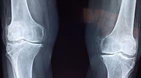 opéré du mauvais genou