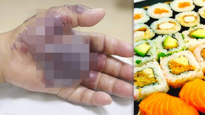 bactérie sushis main amputée