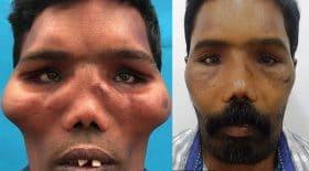 maladie du visage de lion opération os