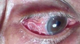 ver filaire oeil opération médecin