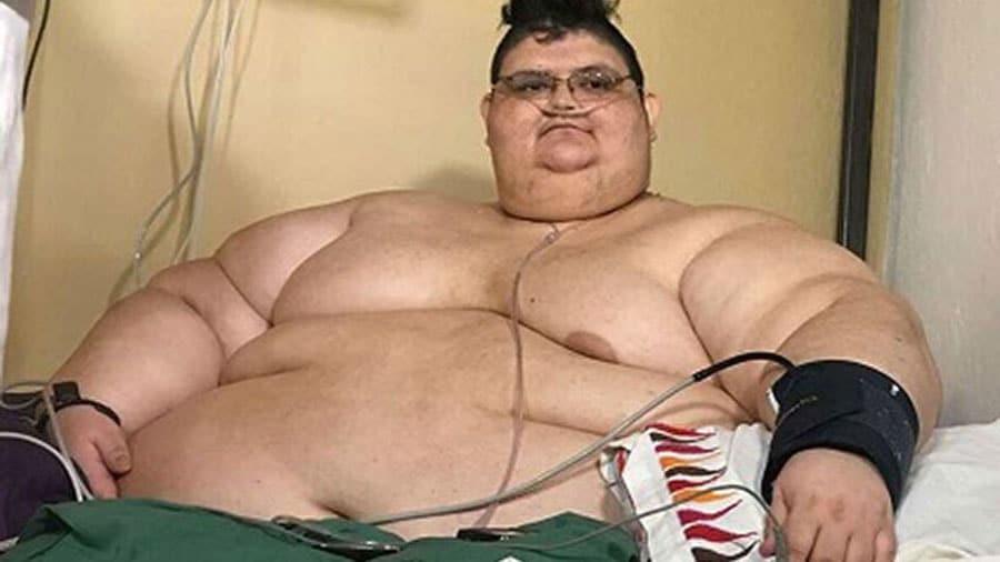 L'homme le plus gros du monde a perdu son record… en perdant près de 300 kilos !