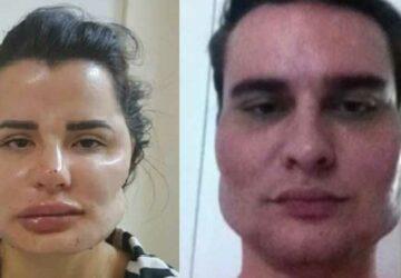 visage difforme chirurgien