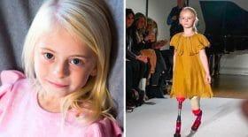 mannequin enfant doublement amputée défile
