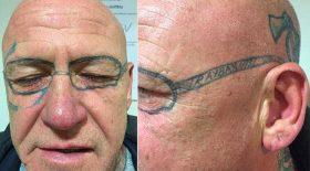tatouage lunettes après soirée alcoolisée laser