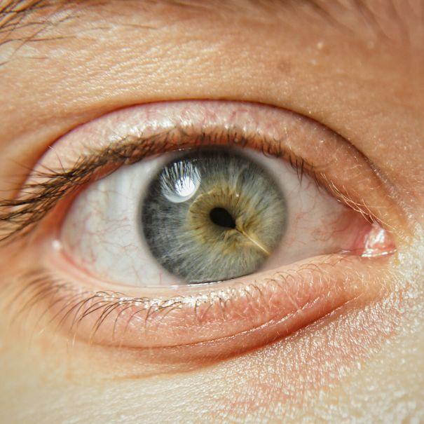 cicatrice oeil