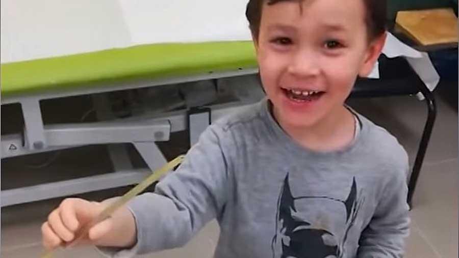 Un enfant né avec un seul bras, essaie avec émerveillement un bras bionique