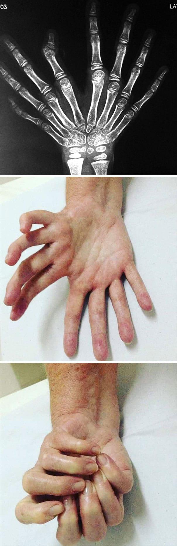 mains-mirroir