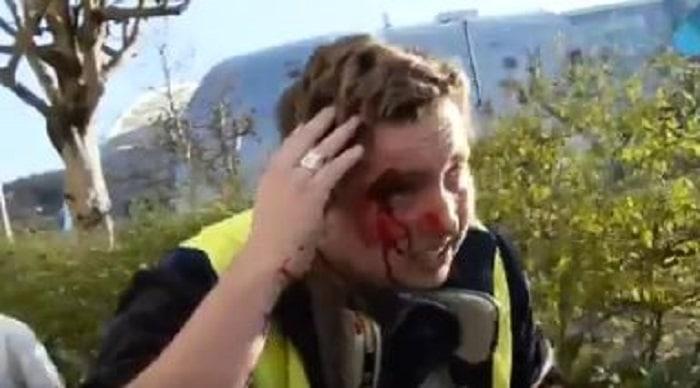 gilets-jaunes-les-images-dune-rare-violence-de-ce-jeune-qui-se-fait-matraquer-a-besancon-video